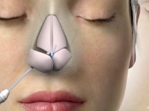 good humidifier after nose surgery